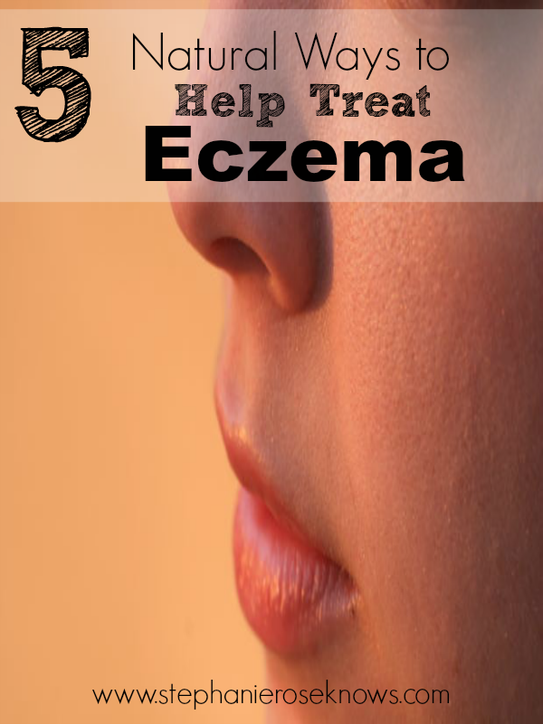 5 Natural Ways To Treat Eczema